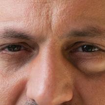 Signature Plastic & Reconstructive Surgery - male procedures - eyelid lift