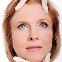 Signature Plastic & Reconstructive Surgery - face - Face lift - female