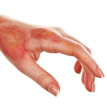Signature Plastic & Reconstructive Surgery - hand and arm - removal of lesions and burns