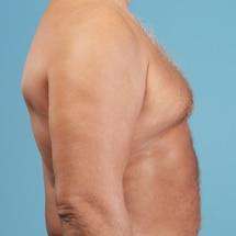 Signature Plastic & Reconstructive Surgery - male procedures - male breast reduction