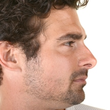 Signature Plastic & Reconstructive Surgery - male procedures - nose reshaping